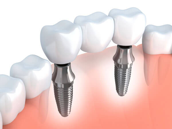 Dental Implants Encino CA